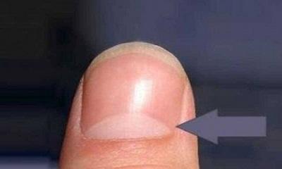 আপনার নখের নিচে কি সাদা দাগ আছে?