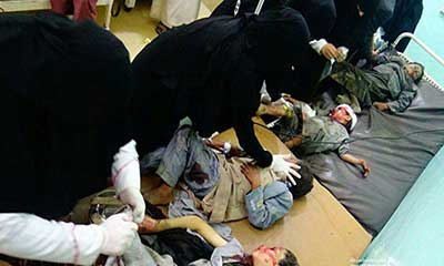 ইয়েমেনে স্কুল বাসে ক্ষেপণাস্ত্র হামলা, ২০ শিশু নিহত