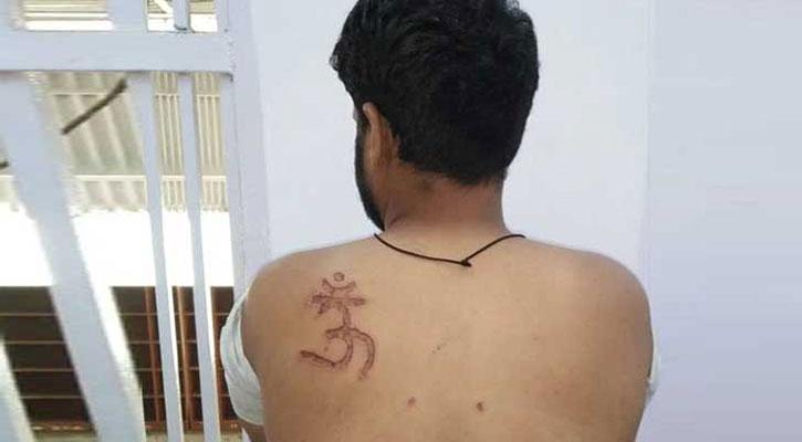 মুসলিম বন্দির পিঠে 'ঔঁ' খোদাই করলেন দিল্লি জেল সুপার